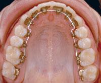 Incognito Eine Moderne Und Unsichtbare Alternative Zu Herkommlichen Zahnspangen
